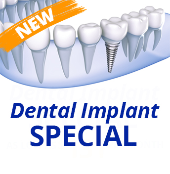 Dental Implant Special Offer in Borger